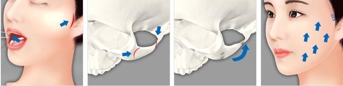 การผ่าตัดโหนกแก้ววิธีที่สอง