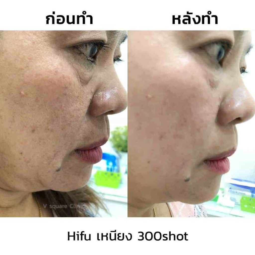 review-hifu-เหนียง-300shot