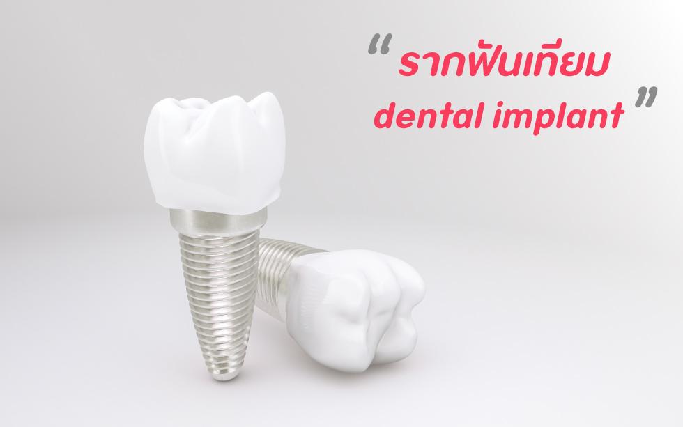 รากฟันเทียม-คืออะไร