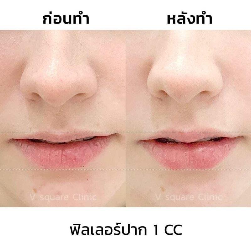 ตัวอย่างรีวิว-ผลการฉีดฟิลเลอร์ปาก-1-cc