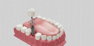 ใส่รากฟันเทียม ราคาเท่าไหร่ ดีไหม