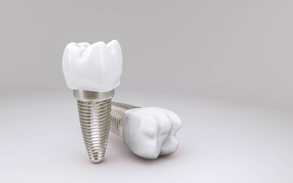 4.อายุการใช้งานของรากฟันเทียม