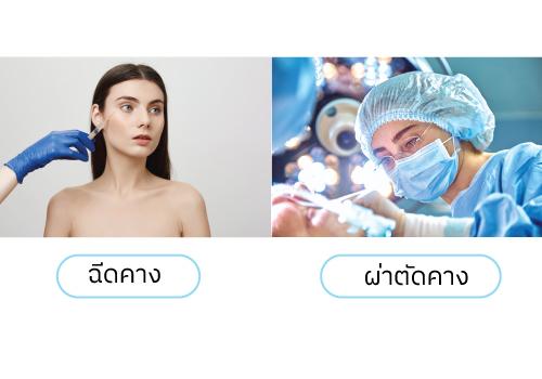 ฉีดคาง-ผ่าตัดคาง-ต่างกันอย่างไร